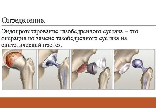 как лучше разработать локтевой сустав после перелома